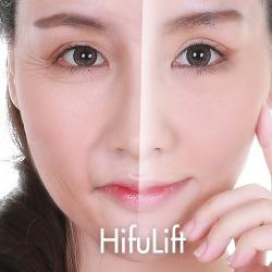 HIFULift