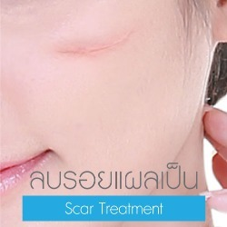 Scar Treatment