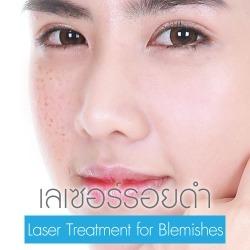 Laser Treatment for Blemishes