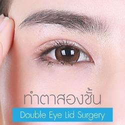 Double Eye Lid Surgery