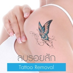 RM Tattoo Removal