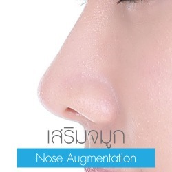 Nose Augmentation
