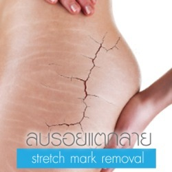 Stretch mark removal laser